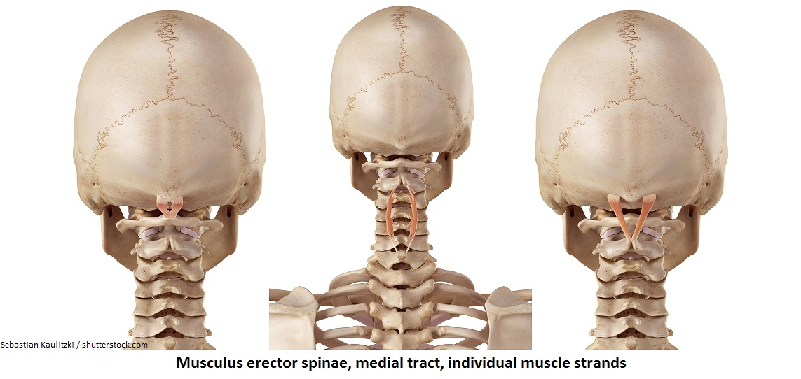 Musculus erector spinae, medial tract, individual muscle strands